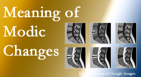 The Novelli Wellness Center sees many back pain and neck pain patients who bring their MRIs with them to the office. Modic changes are often noted.