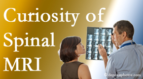 Buffalo, NY MRIs for spinal stenosis may be revealing…or confusing.