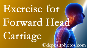 Buffalo, NY chiropractic treatment of forward head carriage is two-fold: manipulation and exercise.