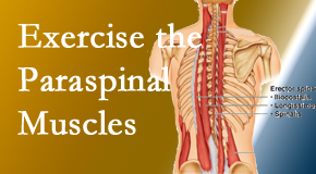 The Novelli Wellness Center describes the importance of paraspinal muscles and their strength for Buffalo, NY back pain relief.