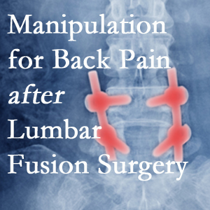 Buffalo, NY chiropractic spinal manipulation helps post-surgical continued back pain patients discover relief of their pain despite fusion.