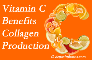 Buffalo, NY chiropractic offers tips on nutrition like vitamin C for boosting collagen production that decreases in musculoskeletal conditions.