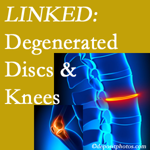 Degenerated discs and degenerated knees are not such strange bedfellows. They are seen to be related. Buffalo, NY patients with a loss of disc height due to disc degeneration often also have knee pain related to degeneration.
